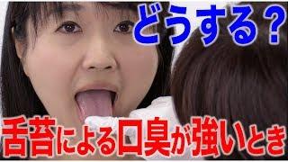 舌苔による口臭が強い場合のケア方法