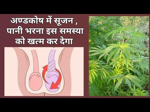 अंडकोष में सूजन , पानी भरना सहित सभी बीमारियों को खत्म करडेगा ये पौधा