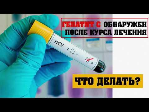 Через какое время проявляются симптомы гепатита с