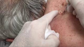 Dozens of Giant Blackheads Popped by Dr. Cyst Buster (Educational)