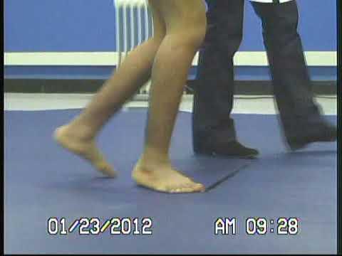 Daños en el aparato de ligamento de la rodilla ICD