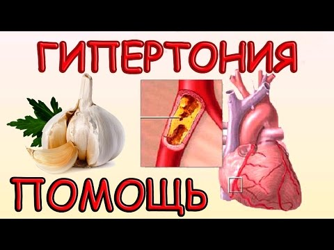 Боли в голове при артериальной гипертонии