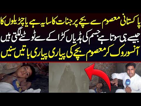 پاکستانی بچہ جو جیسے ہی سوتا ہے اس کی ہڈیاں ریزہ ریزہ ہو جاتی ہیں :ویڈیو دیکھیں