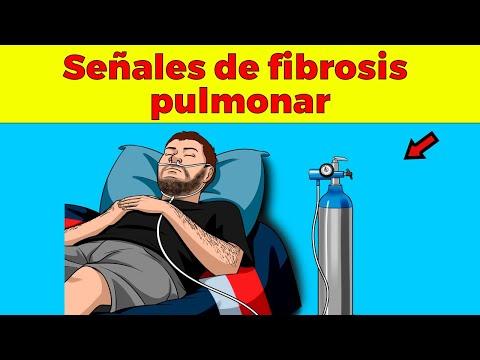 Estos Son Los Principales Síntomas De La Fibrosis Pulmonar