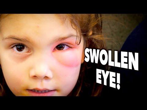 Takipmata edema, eye spot