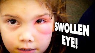 SWOLLEN EYE! (Periorbital Cellulitis?)   Dr. Paul