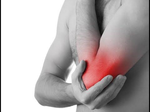 Come curare le articolazioni del ginocchio con artrosi