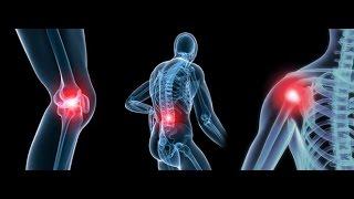 Treatment for Osteoarthritis