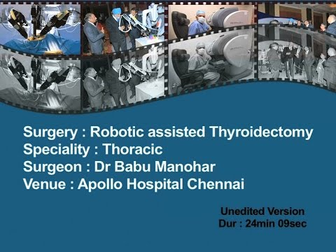 Robotic Assisted Thyroidectomy unedited ver.