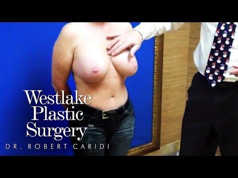 Educational Video: Symmastia