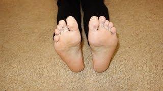 Лечение грибка на ногах народными средствами | #грибокнаногах #edblack