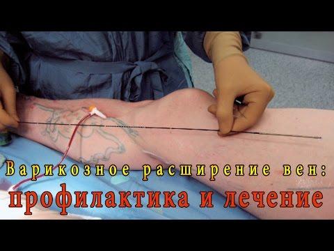 Программа бесплатного лечения гепатита с в москве