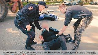 Мотоциклист снёс себе челюсть в ДТП с трактором в Северодвинске (18+) // VDVSN.RU