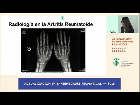 Tratamentul artritei artrozei piciorului