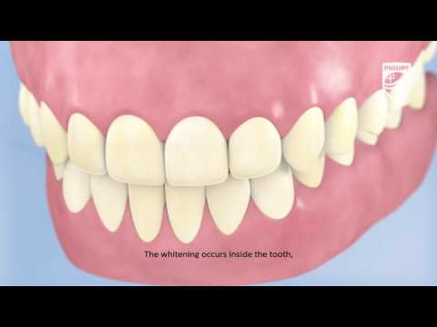 The Science Behind Tooth Whitening animated with subtitles