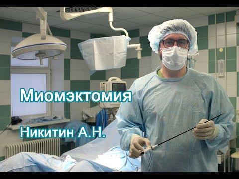 Миомэктомия после клипирования