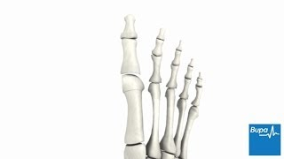 How bunion removal surgery is carried out