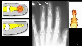 tuft fracture - fracture of the distal finger tip
