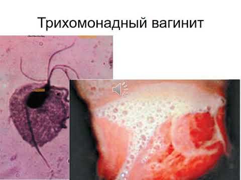 Воспалительные заболевания женских половых органов специфической и неспицифической этиологии.