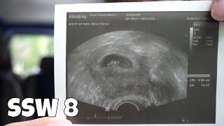SSW 8   Erste Ultraschalluntersuchung, Schwangerschaftsübelkeit [Schwangerschafts-Update]