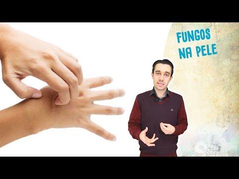 Que perito trata pregos a mãos