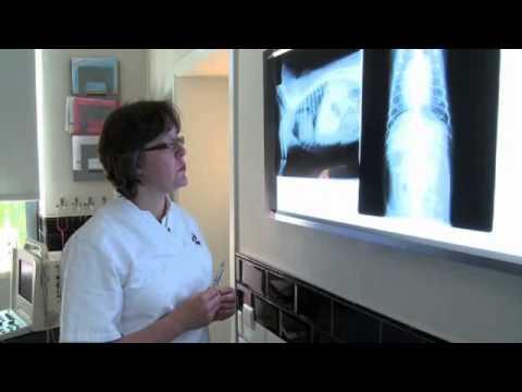 Trattamento laser di harkov prostata