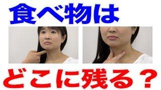 咽頭部には食塊が残留しやすい場所が2箇所ある?