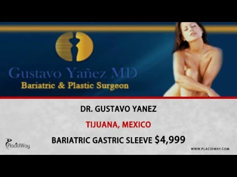 Top-Gastric-Sleeve-Surgery-in-Mexico