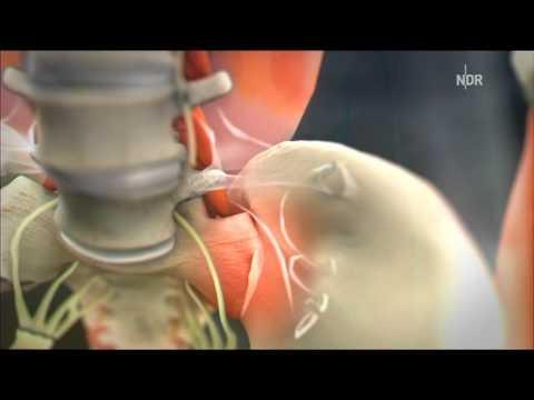 Meschposwonkowyj die Osteochondrose schejnogo der Abteilung der Öbung