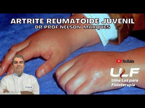 Unguente pentru recenzii ale artritei genunchiului