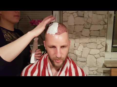 Was vom Haarausfall des Haares bei den Frauen hilft