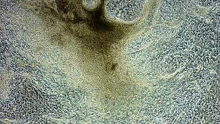 マウスのiPS細胞から分化誘導した心筋細胞の拍動_小林正之教授(秋田県立大学 生物資源科学部 応用生物科学科 動物分子工学研究室)