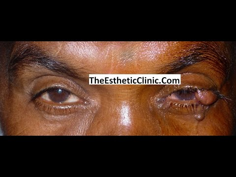 Videos from Dr. Debraj Shome