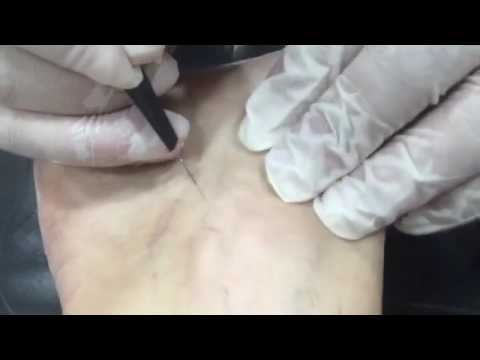 Se è possibile conservarsi completamente varicosity senza operazione