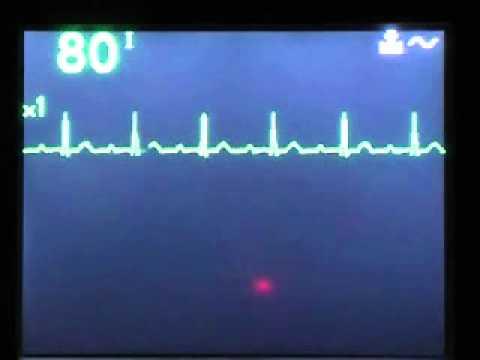 Smanjenje krvnog tlaka nego što je povezano s