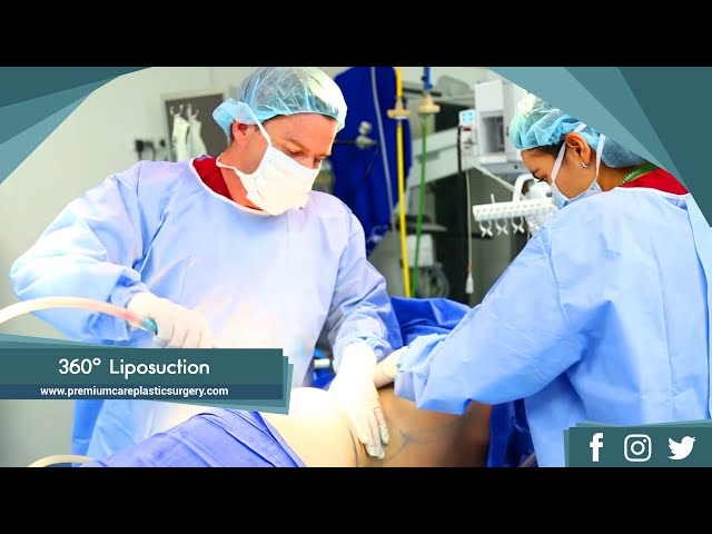 360 degree Liposuction