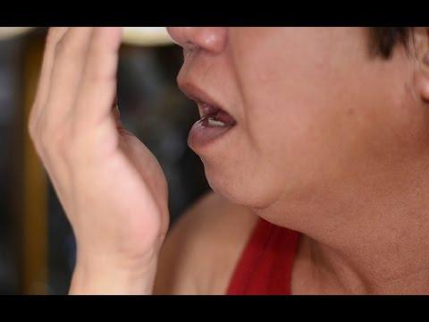 Linsulina siringa monouso