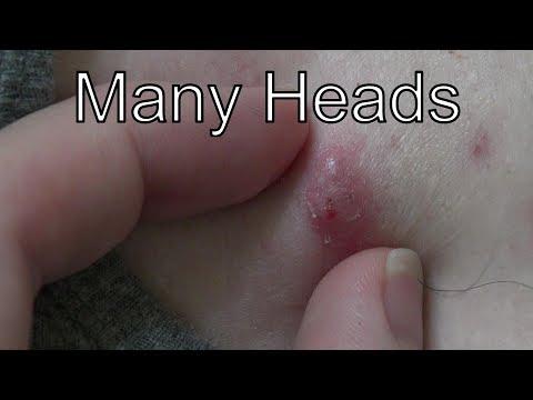 Multi-Head Pimples!