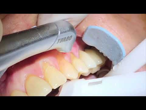 Laser tooth cavity prepared with Waterlase iplus