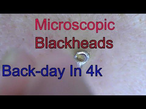 Blackhead Expulsion!