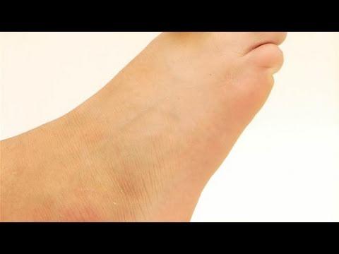 รองเท้าที่มีร่วมกัน valgus เข่า