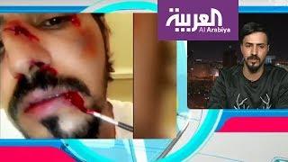 9943e93ba تفاعلكم: قصة سعودي متخصص في مكياج المؤثرات السينمائية مع هوليوود