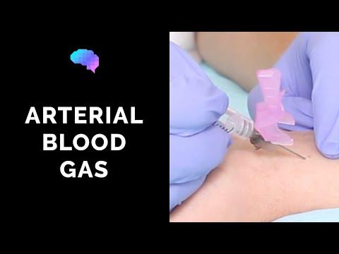 Operațiune împotriva diabetului