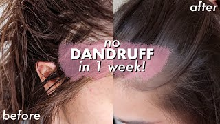 NO DANDRUFF, itchy scalp and hair loss IN ONE WEEK! *life changing*