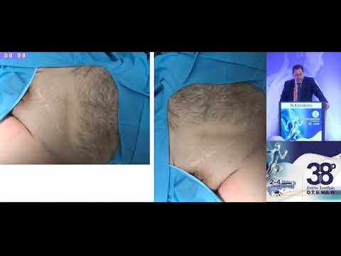 Kanakaris N. - Fragility fractures of the acetabulum: surgical strategy / reduction & fixation techniques