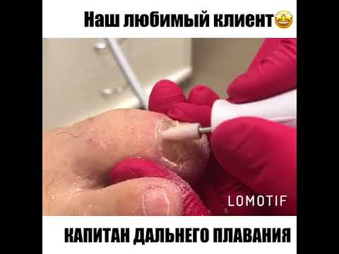 Gribok der Nägel des Beines des Medikaments