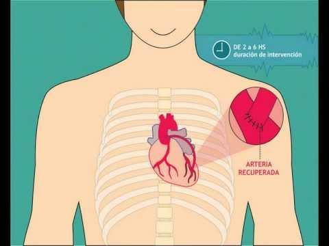 Productos para los pacientes hipertensos