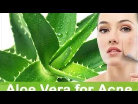 Video கற்றாழையின் மருத்துவ பயன்கள்(aloe Vera medicinal uses)
