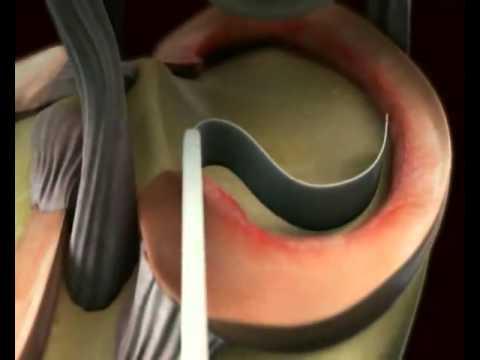 Esercizi per rafforzare la colonna vertebrale cervicale