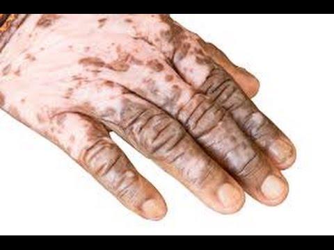 Leczéma microbien sous la poitrine